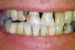 Rotte tanden voor behandeling
